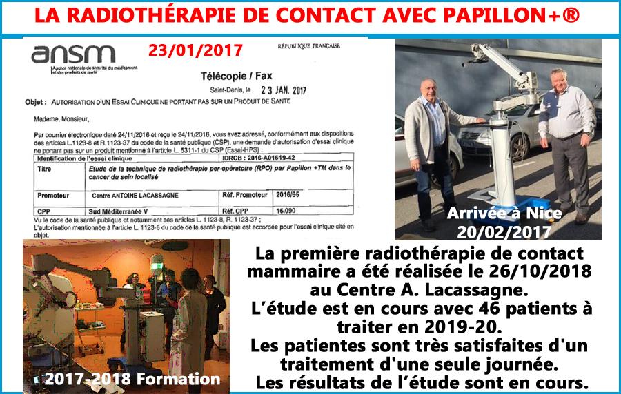 Radiothérapie de contact, pour le cancer du sein avec PAPILLON +une première mondiale le 26 octobre 2018