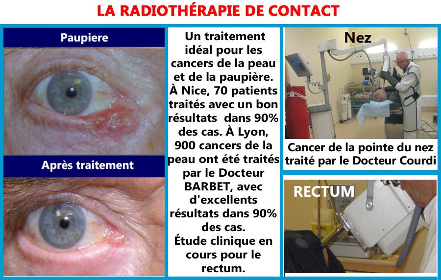 Radiothérapie de contact, pour le cancer paupière, nez rectum