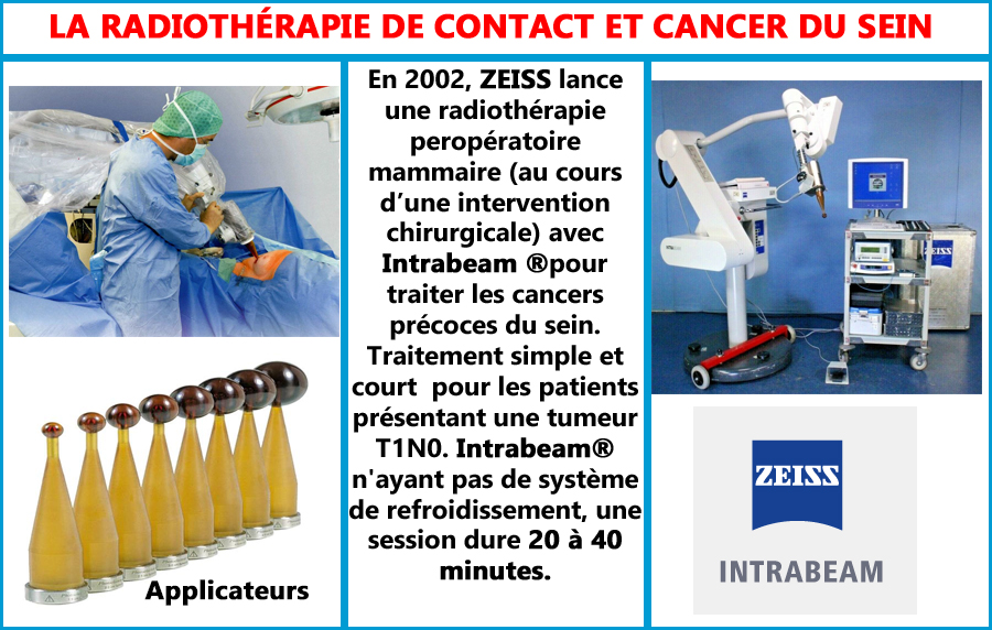 Radiothérapie de contact, pour le cancer du sein avec INTRABEAM