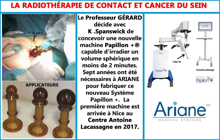 Radiothérapie de contact, pour le cancer du sein avec PAPILLON +